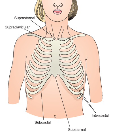 sites of respiratory retractions